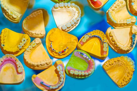 Photo for Dentistry. Colorful model of the jaw of the person. Manual for training of dentists. Prosthetic dentistry. Installation of crowns and bridges. Of the dental procedures. - Royalty Free Image