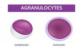 Agranulocytes white blood cells - medical concept set