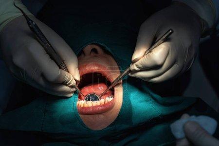 Photo pour Dentiste de plan rapproché et assistant fonctionnant pour le contrôle et le nettoyage de dents à la clinique dentaire, concept de soin de dent. - image libre de droit
