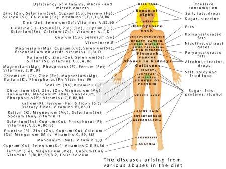Illustration pour Abus du régime alimentaire. Les maladies découlant de diverses violations du régime alimentaire. Les maladies résultant d'une carence de vitamines, macro - et micro-éléments - image libre de droit
