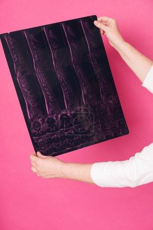 Photo pour IRM écran de hernie rachidienne chez les femmes âgées mains sur fond rose. - image libre de droit