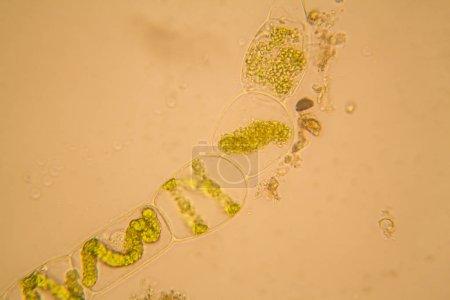 Photo pour Plancton d'eau douce de l'étang et algues au microscope. Spirogyre - image libre de droit