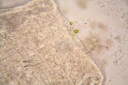 Photo pour Organismes microscopiques de l'eau de l'étang. Nématode - détails - image libre de droit
