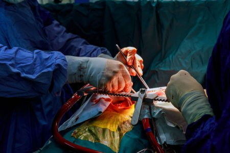Photo pour Un chirurgien effectue un pontage aortocoronarien greffe artère de chirurgie à cœur ouvert - image libre de droit