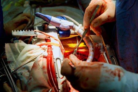 Photo pour Chirurgie cardiaque. Chirurgie à cœur ouvert suture plus saphène veine coronarienne pontage chirurgical - image libre de droit