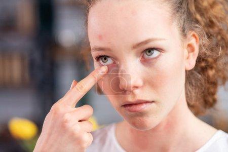 Photo pour Ayant les yeux sensibles. Malheureuse jeune femme avec des cheveux bouclés démangeaisons sa paupière tout en découvrant la sensibilité extrême - image libre de droit