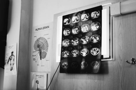 Doctor checking x-ray results