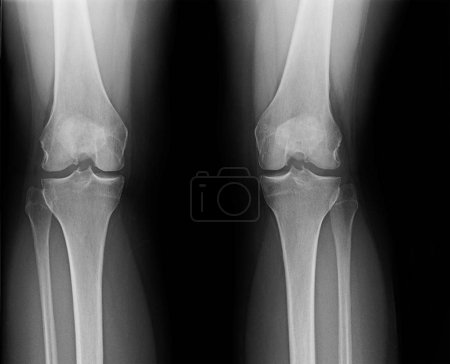 X-ray of knees of mature female suffering from minor osteoarthritis and bone spurs.