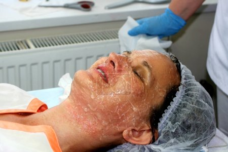 Girl on the cosmetic procedure. Face cleaning. Fractional rejuvenation. Botox. Laser resurfacing. elos lifting.
