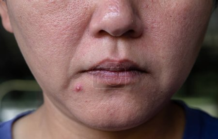 Photo for Close up photo of pustules acne skin - Royalty Free Image