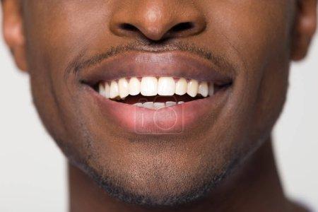 Photo pour Gros plan vue rayonnant sourire large mâle blanc orthodontique, homme noir africain avec des dents saines tout droit propres isolé sur fond blanc gris studio, concept de dentisterie dents blanchiment des soins de santé - image libre de droit