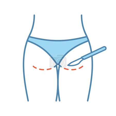 Gluteoplasty color icon. Buttock augmentation and liposuction. Buttock lift surgery. Plastic surgery. Isolated vector illustration