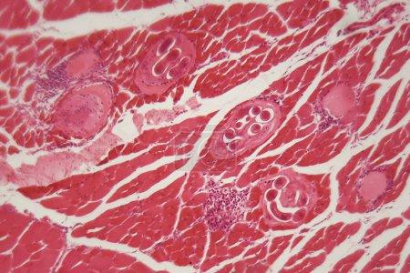 Photo pour Larves de Trichinella spiralis dans les tissus musculaires au microscope. Trichinella spiralis est un nématode parasite responsable de la trichose et affectant les mammifères. . - image libre de droit