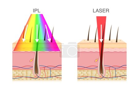 Illustration for The difference of using IPL light and laser in hair removal. Illustration about beauty technology. - Royalty Free Image