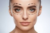 beauty portrait of young woman, plastic surgery concept. Model with puncture lines on face