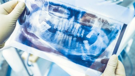 Photo for Dental implant therapy. Diagnostic before replacement of damaged and missing teeth. Surgeon studying panoramic x ray. - Royalty Free Image