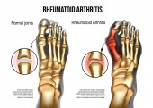 Rheumatoid arthritis Bones the of foot