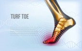 Horizontal turf toe foot traumas banner