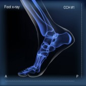 Medial view x ray of bones the of foot