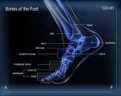 X ray of bones the of foot Medial view