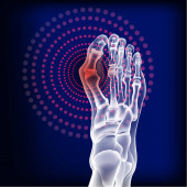 Bones the of foot with Rheumatoid arthritis