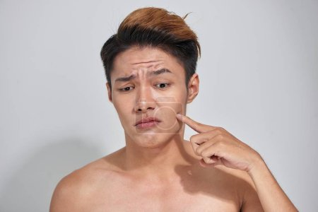 Attractive youthful naked male with trouble skin.