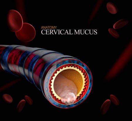 Anatomie der Bronchitis, Schleim, der als Brustkälte abgesondert wird, als 3D-Illustration