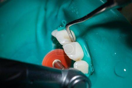 Photo pour Inspection et traitement des dents antérieures chez le dentiste, cofferdam est mis sur les incisives, prises en gros plan, dents blanches propres. - image libre de droit
