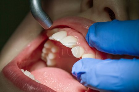 Photo for Boy at the dentist's appointment. Examination of the child's mouth and teeth. - Royalty Free Image