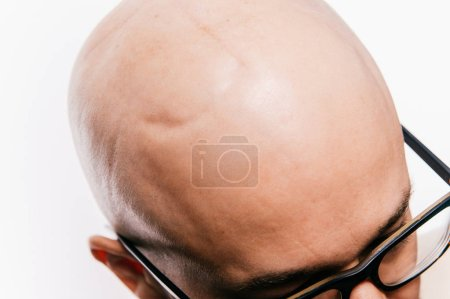 Photo for Partial view of bald man after cancer neurosurgery operation - Royalty Free Image