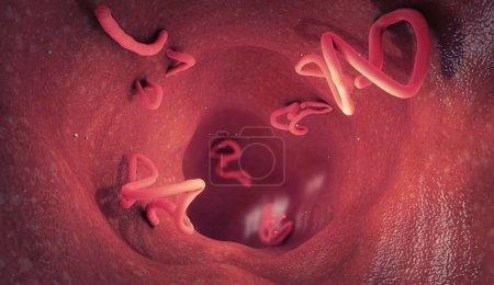 Photo pour Infestation par le ténia dans un intestin humain illustration 3D - image libre de droit