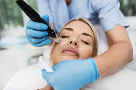 Photo pour Mésothérapie de micronèdre. Belle femme blonde recevant un traitement de rajeunissement microneedling. - image libre de droit