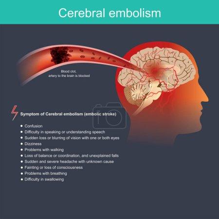 Illustration pour Il se produit lorsqu'une particule d'une partie du corps traverse la circulation sanguine jusqu'au cerveau et bloque le flux sanguin dans une artère du cerveau. . - image libre de droit