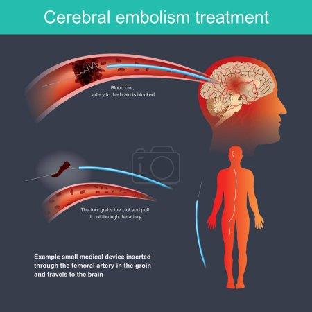 Illustration pour Exemple petit dispositif médical inséré dans l'artère fémorale - image libre de droit